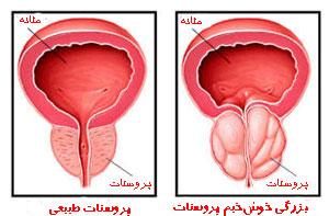 درمان قطعي پروستات